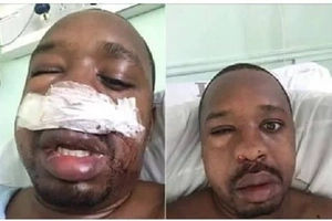 Boniface Mwangi denies getting a 'dog's beating' from his 'Nyeri' wife
