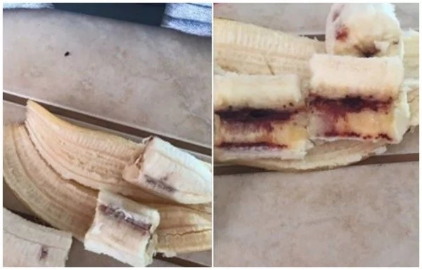 Alarm as boy, 10, reportedly contracts HIV from BANANAS (photo)