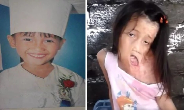 Disfigured girl in Leyte sings 'Let it Go'