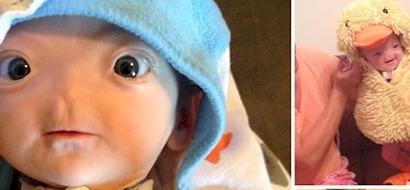 Esta bebé milagrosa pesó menos que una bolsa de azúcar cuando nació, no creerás cómo se ve 5 meses después