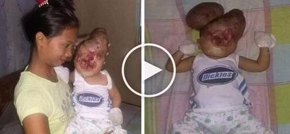 Pampanga baby with deformed head breaks hearts of Pinoy netizens