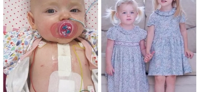 A 2-year-old girl survived rare heart condition to be born alongside her twin sister after doctors gave up