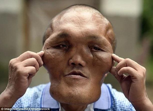 Hombre con deformidad facial espera por cirugía