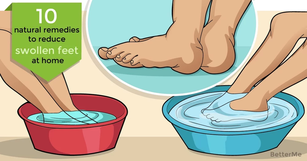 10 natural remedies can help reduce swollen feet at home