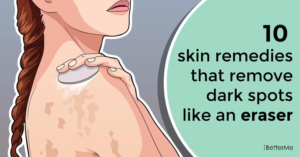 The top 10 skin remedies that remove dark spots like an eraser