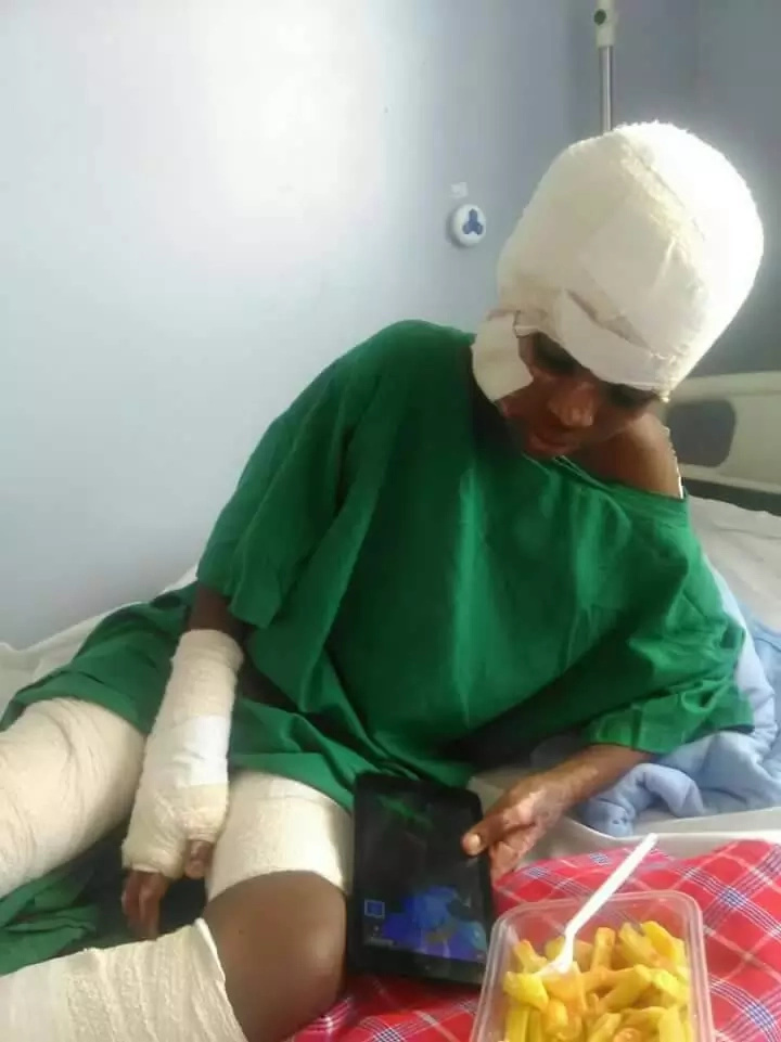 12-year-old burnt badly while trying to save his sister from a terrible fire