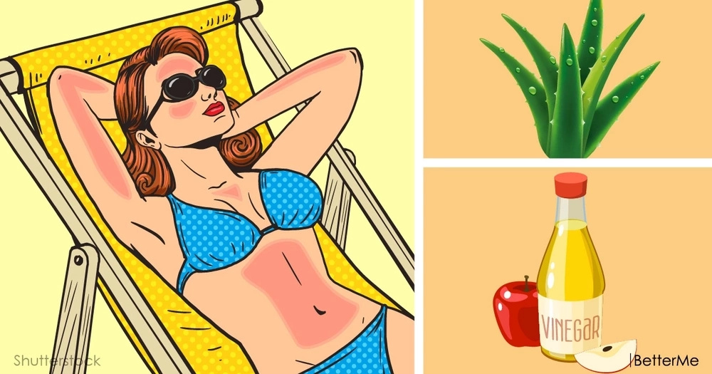 Heal sunburn with 6 natural remedies