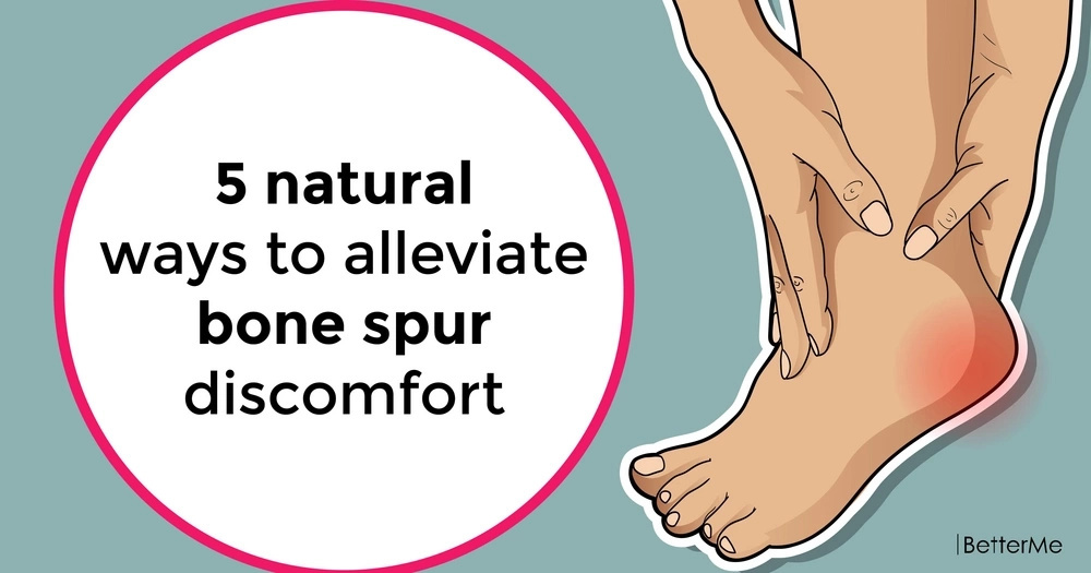 5 natural ways to alleviate bone spur discomfort