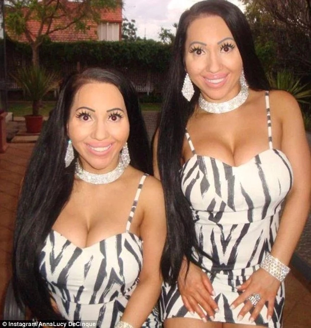 Twins who have ONE boyfriend and splashed out a fortune on plastic surgeries want their natural looks back (photos, video)