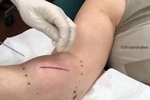 Disgusting Moment Doctor Removes HUGE Ball Of Fat From Woman's Arm