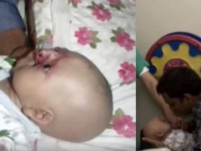 Padres planearon envenenar a su bebé que nació sin nariz - Entonces los doctores les prescribieron algo que las farmacias no podían ofrecer