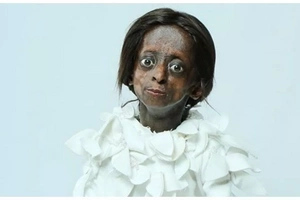 President Zuma, hundreds of mourners to attend funeral of 1st black girl diagnosed with progeria (photos)