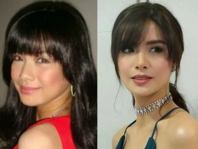 Erich Gonzales insists she did not have a nose job after a fan noticed it in her before and after photos
