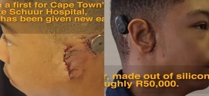 Teen gets gift of hearing after living without EARS for 15 years (photos, video)