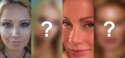 Before Shiryl Saturnino's unfortunate incident, these 7 women had their share of failed plastic surgeries
