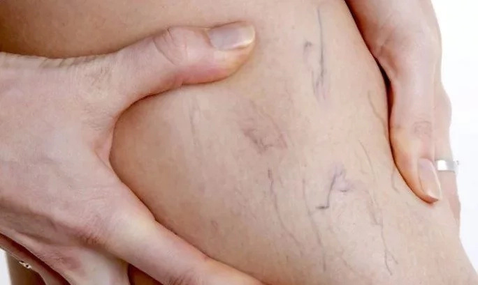 Man thought he had varicose vein. Then doctor saw that his 'vein' was moving