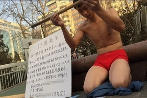 Desperate father begs passers-by to WHIP him to raise money for his son's treatment (photos, video)