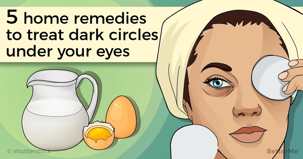 5 home remedies to treat dark circles under your eyes