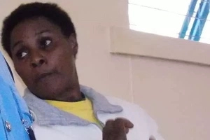 Embu Woman Sentenced To Life For 'Deforming' Husband With Acid, See His Photo