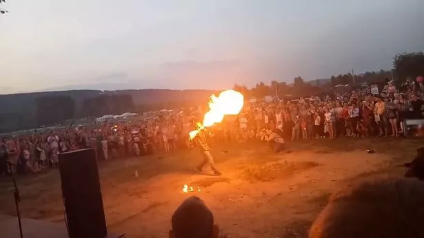 Oops! Fire breather sets his face ablaze when a public stunt goes awfully wrong