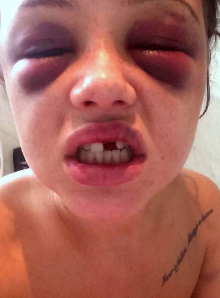 Golpeó brutalmente a su novia mientras ella dormía
