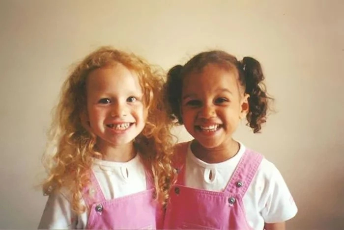 Identical Twins Born With Differenr Skin Colour