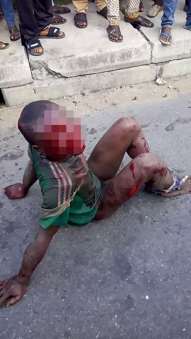 Lynch Mob In Nigeria Beat And Burn A Boy For Stealing Food