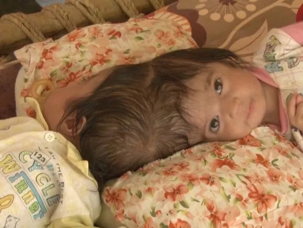 Scans show the girls have separate brains, which enhances the chances of a successful surgery