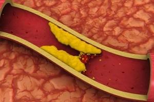 Este remedio casero te ayudará a bajar el colesterol malo en solo 40 días