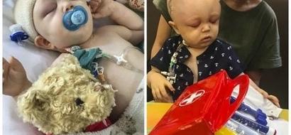 Boy born with TRIANGULAR head had his skull broken and put back together like a jigsaw (photos)
