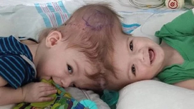Once-Conjoined Twins See Each Other For The First Time