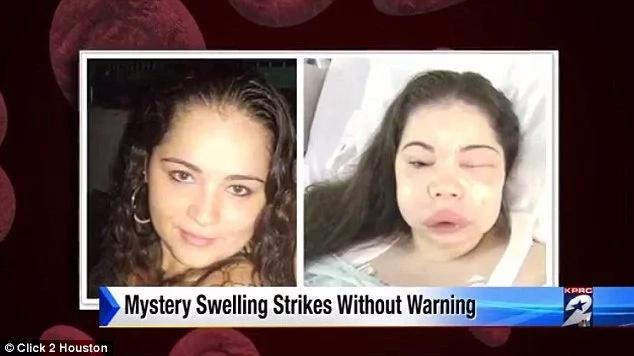 Misteriosa enfermedad hizo que su cara creciera el doble
