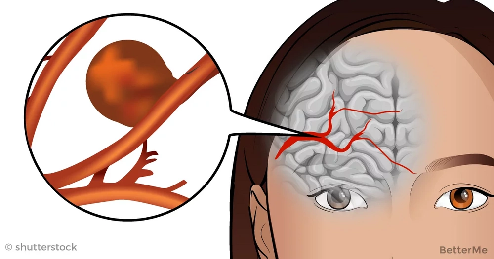 How to discover a brain aneurysm before it's too late