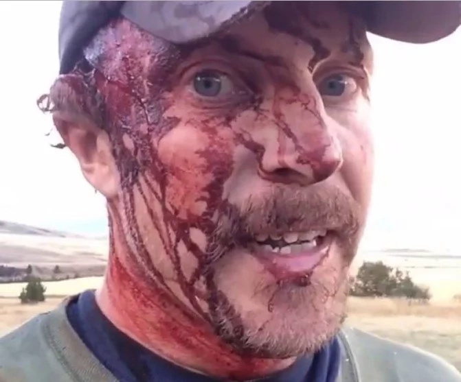 Lucky guy just just survived a grizzly attack and tells the tale