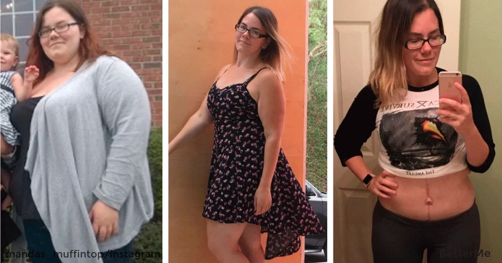 Amanda told openly how she lost 150 pounds