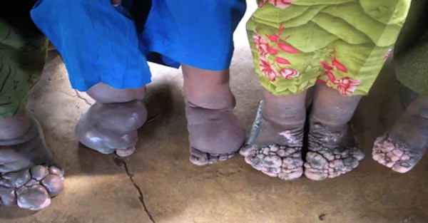 The condition causes severe swelling of feet and legs. Photo: Global Atlas of Helminth Infections