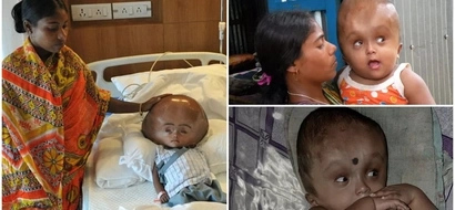 Miracle girl whose head swelled to 3 times its normal size defies the odds to survive (photos)