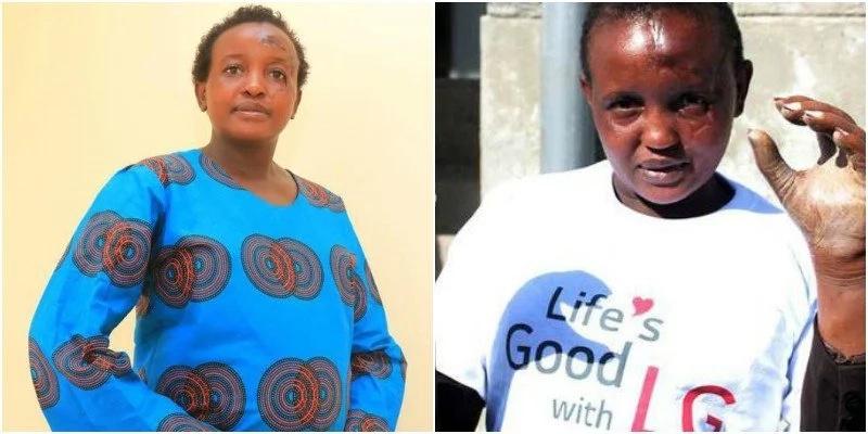 Jamaa amtumia Jackline Mwende aliyekatwa mikono na mumewe video hii ILIYOWAGUSA wengi (Video)