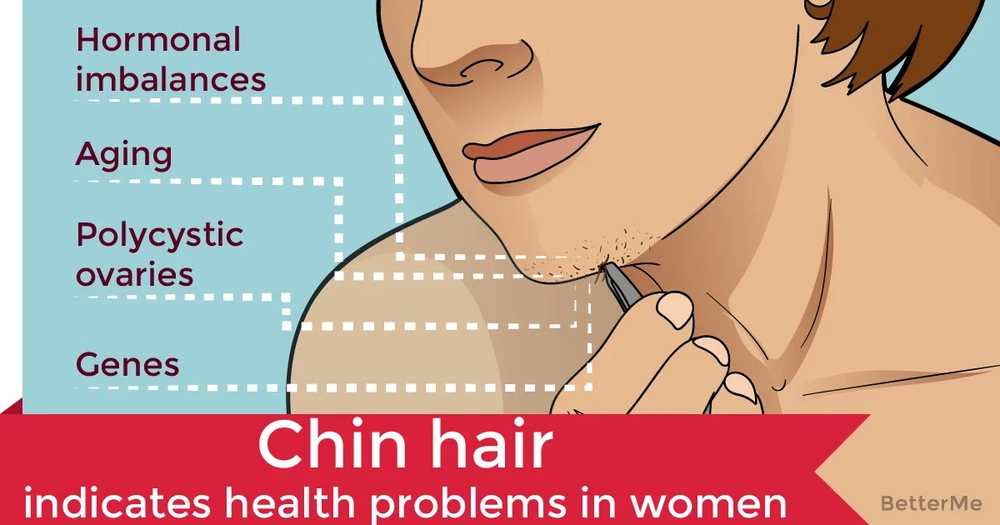 Chin hair could indicate health problems in women