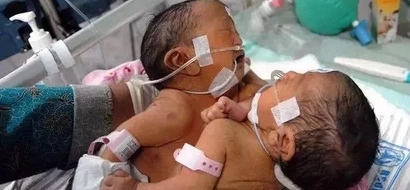 So sad! Twins sisters CONJOINED at abdomen, liver and umbilical cord die soon after birth (photo)