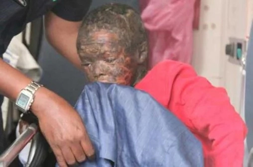 Wajir boy crippled from rare skin disease airlifted to Nairobi