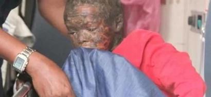 Heartbreaking! Wajir boy crippled from rare skin disease (Photos)