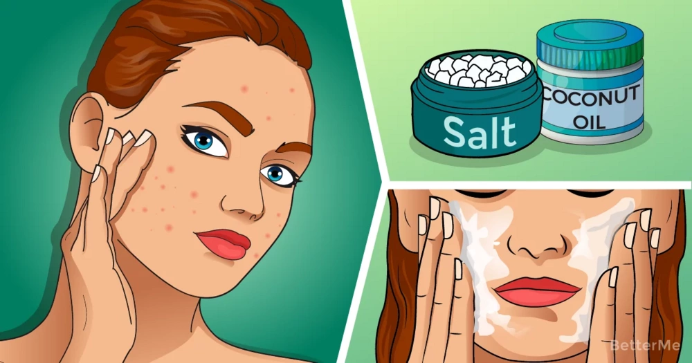 5 uses for epsom salt with acne