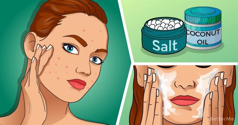 5 uses for epsom salt with acne