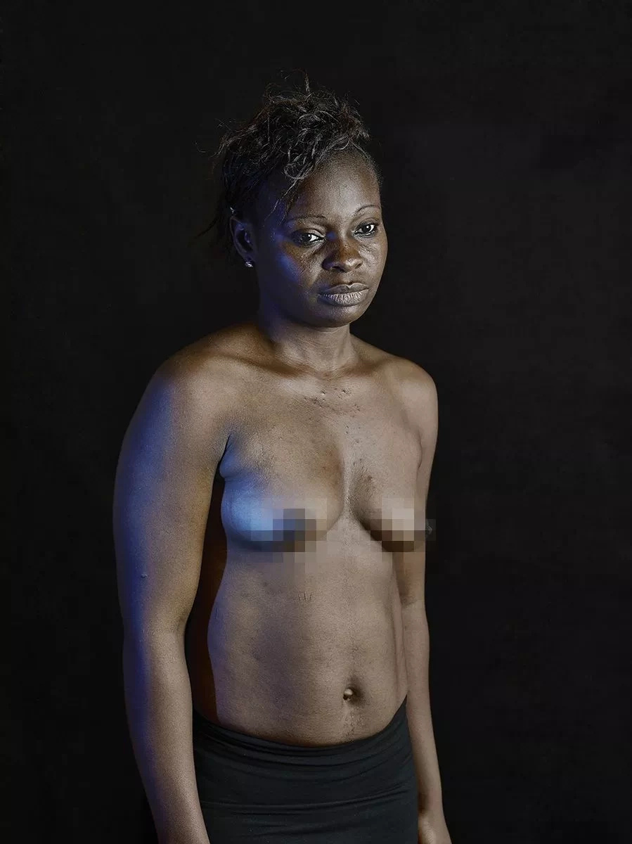 Breast ironing in cameroon are mistaken