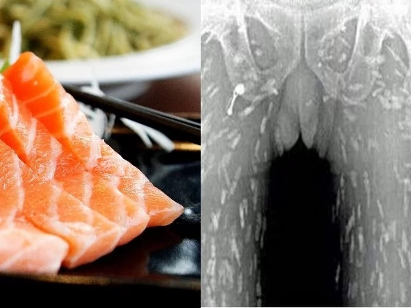 For The Love of Sushi! A Man's Body Tattered With Hundreds Of Worms! Find Out Why!