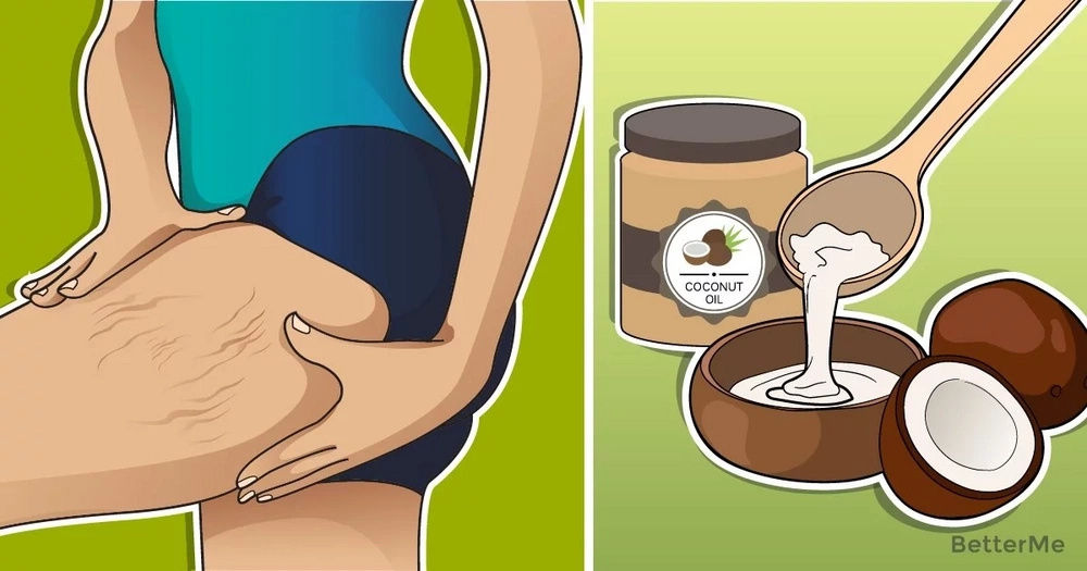 How to get rid of stretch marks using coconut oil