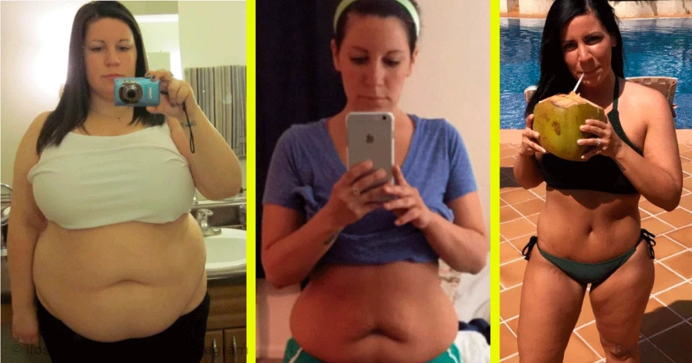 Kristine Strange shed 101 pounds by making a food journal
