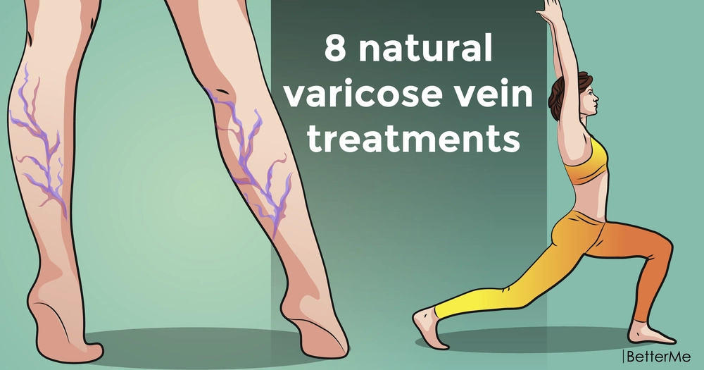 8 natural treatments for varicose vein
