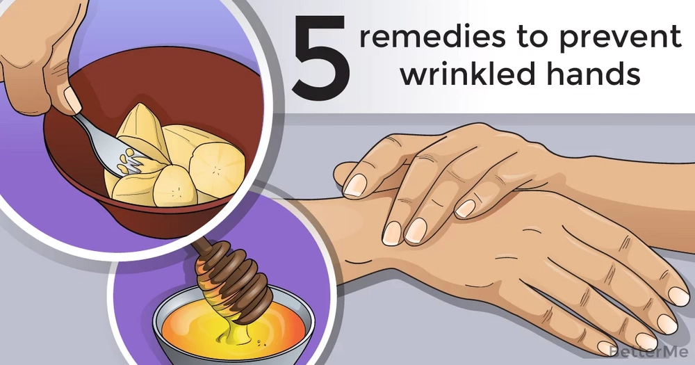 5 remedies to prevent wrinkled hands
